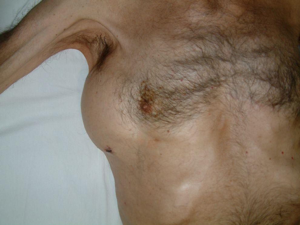 Lenfadenopati ve Lenfoma